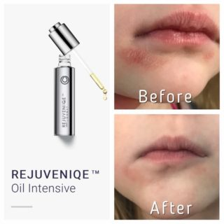 Monat Rejuveniqe Oil You Won T Believe The Before And After Pictures