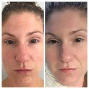 Monat Vegan Skincare Review Fact Vs Fiction Colorado Kelly